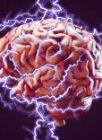 Brain X2